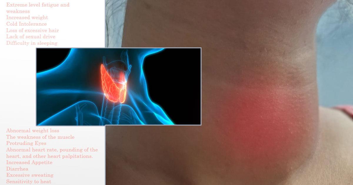 Thyroid Disorder In Women