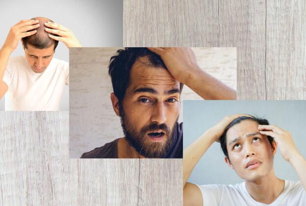Hair fall reasons in teenage male